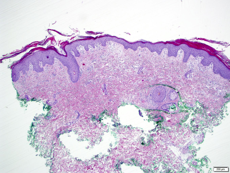 Pathology Outlines - Pityriasis rubra pilaris