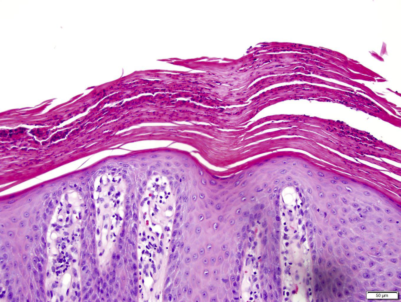 palmoplantar psoriasis pathology)