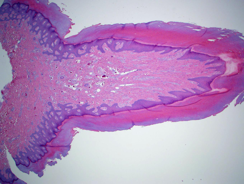 Polypoid dermal proliferation