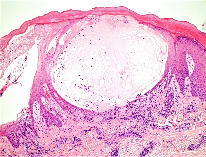 Severe acute spongiotic dermatitis