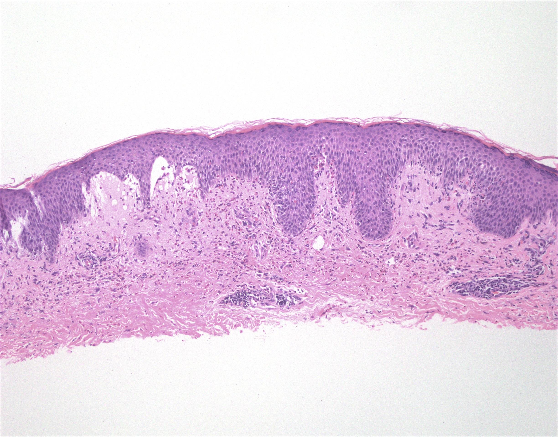 Eosinophilic spongiosis with adjacent subepidermal blister