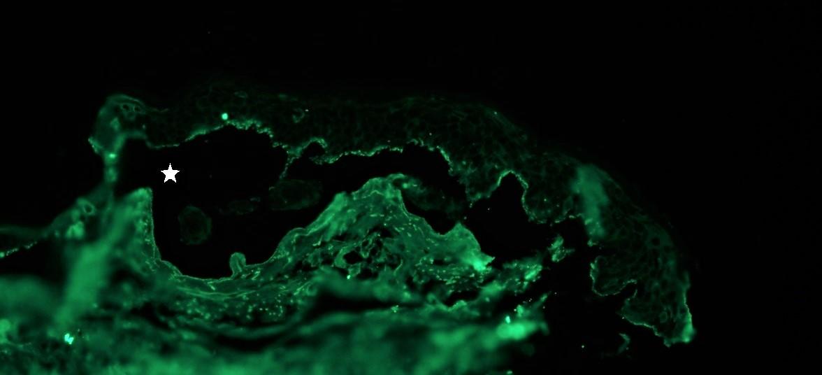 Salt Split skin with epidermal reactivity for IgG on roof of blister cavity (star)