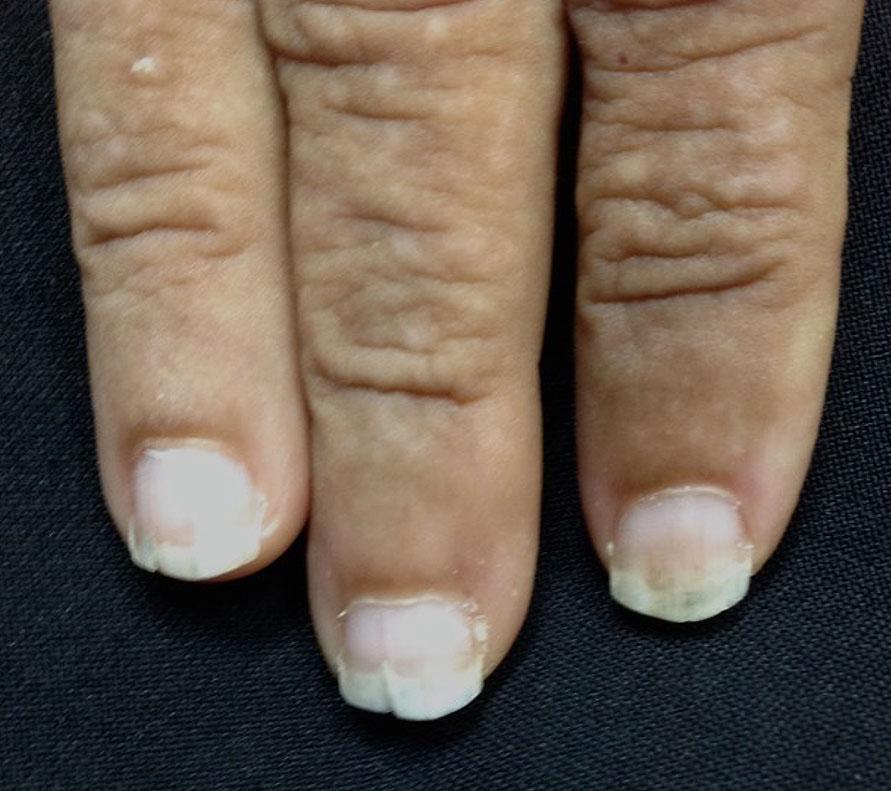 Nail changes in Darier disease