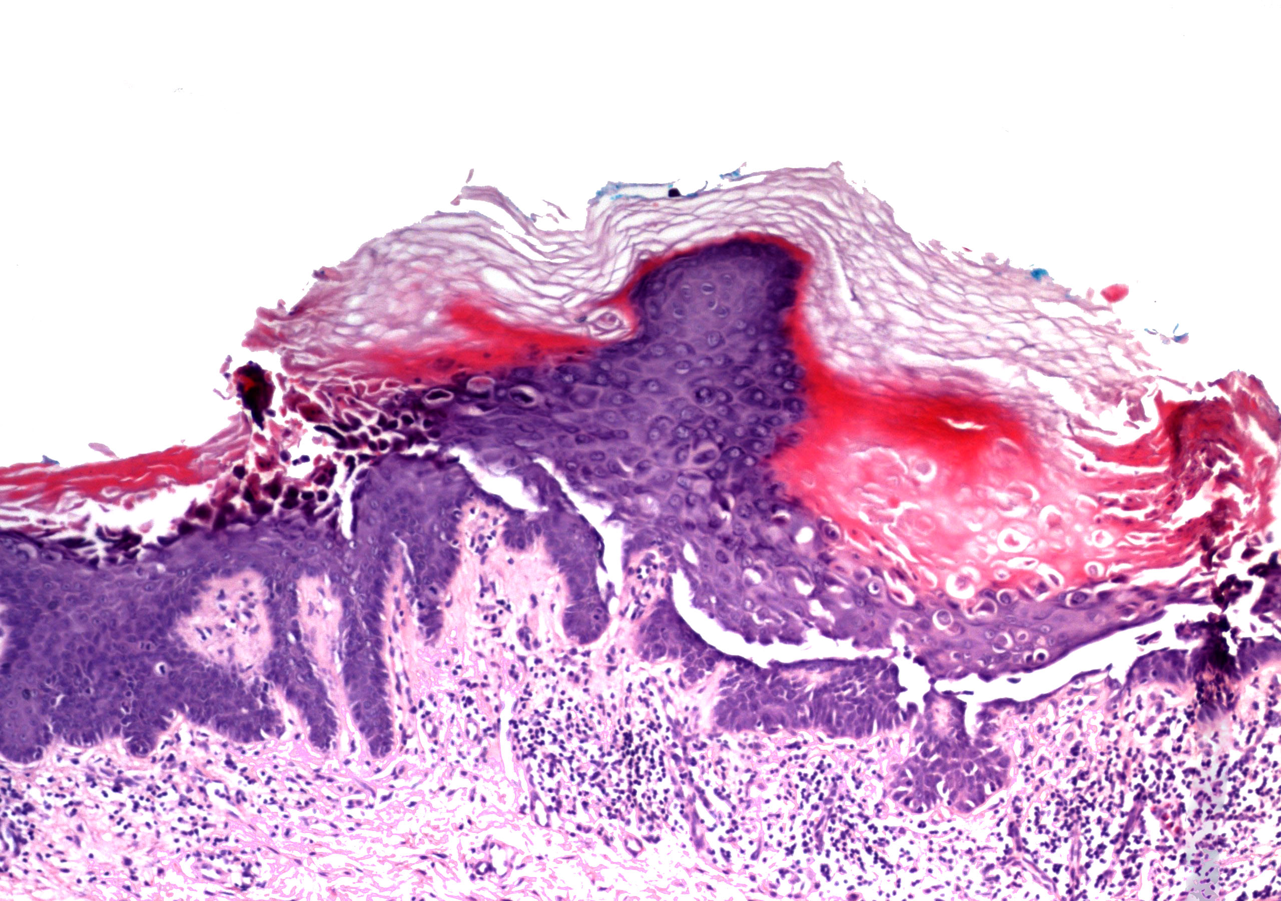Hyperkeratosis and<br>intraepidermal<br>clefting