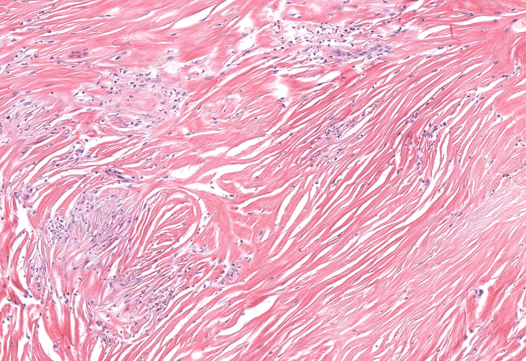 Storiform fibrosis