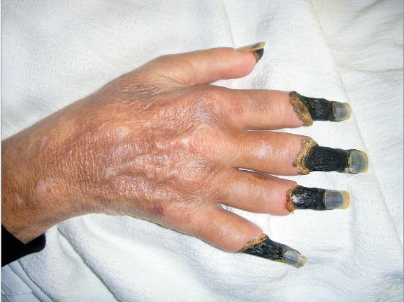 данном разделе у лежачей бабушки почернели пальцы на ноге лампочка, которая раньше