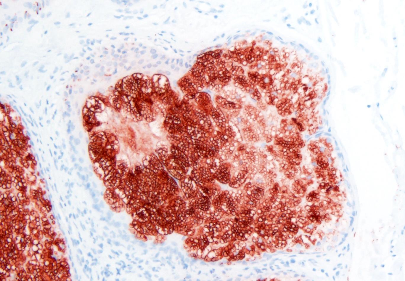 Adipophilin+ sebaceous gland