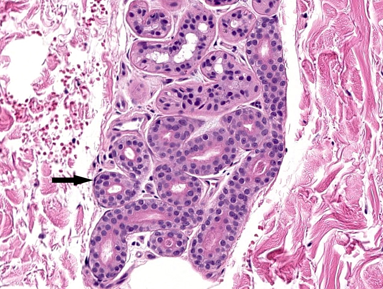Eccrine gland, myoepithelial cell