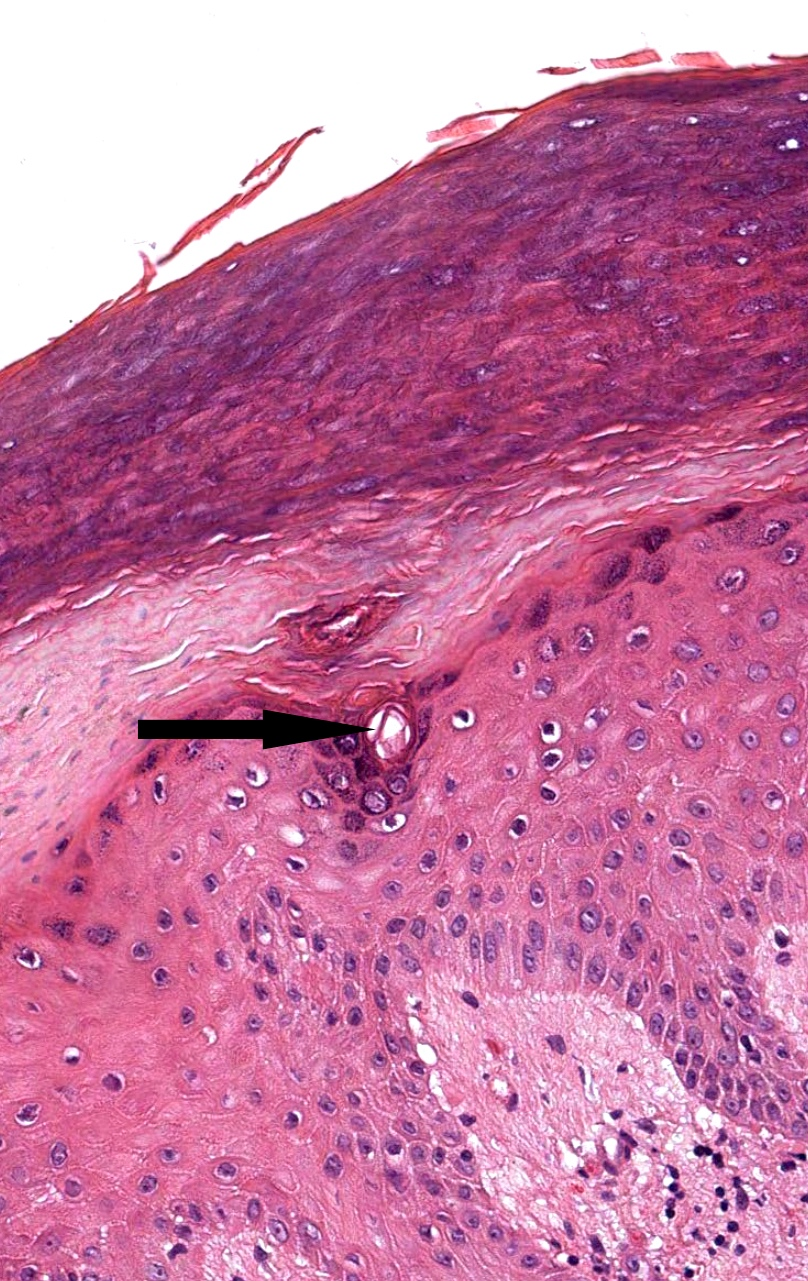 Intraepidermal portion of eccrine duct (acrosyringium)