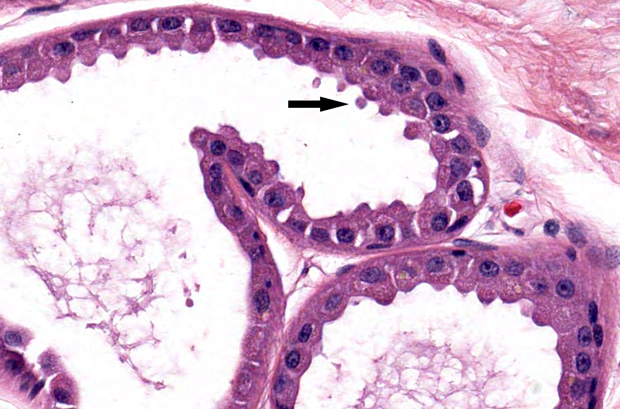 Apocrine gland with decapitation secretion
