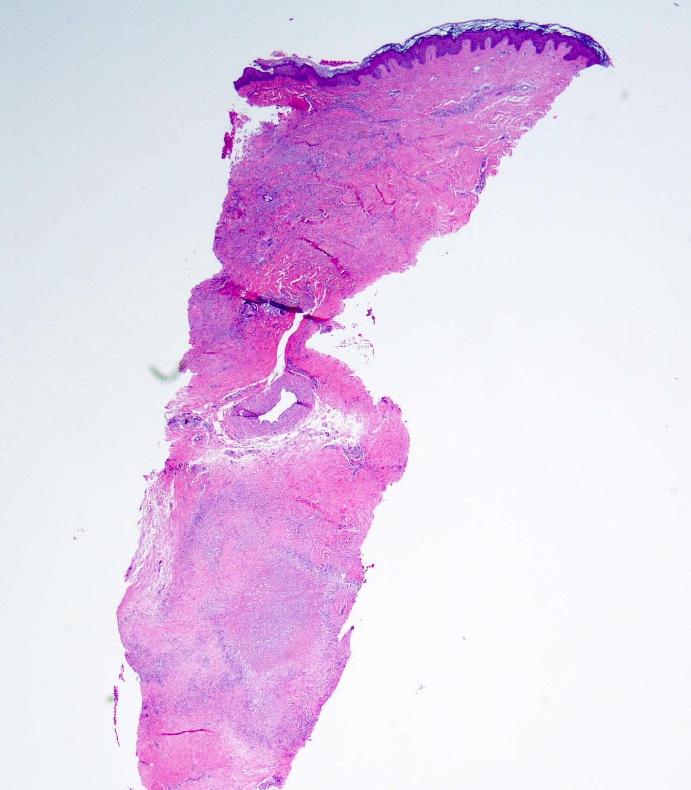 Deep dermal palisaded granuloma