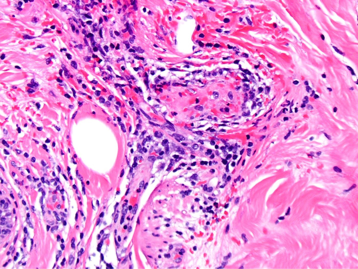 Benign atrophic papulosis