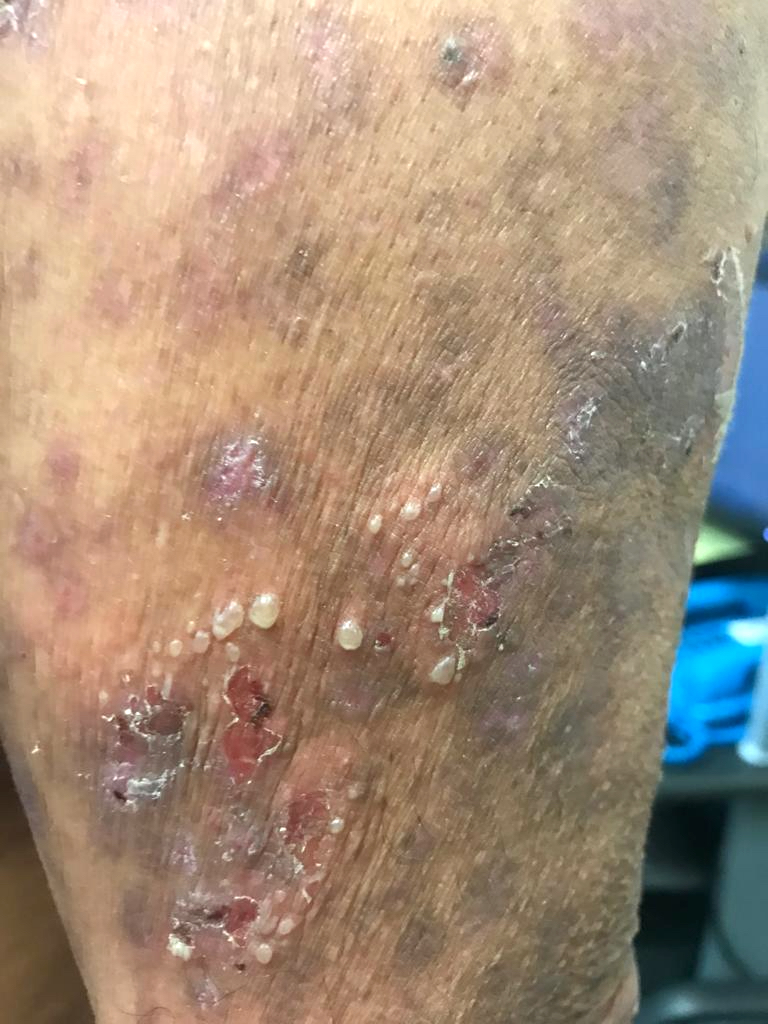 Annular lesions, flaccid bullas