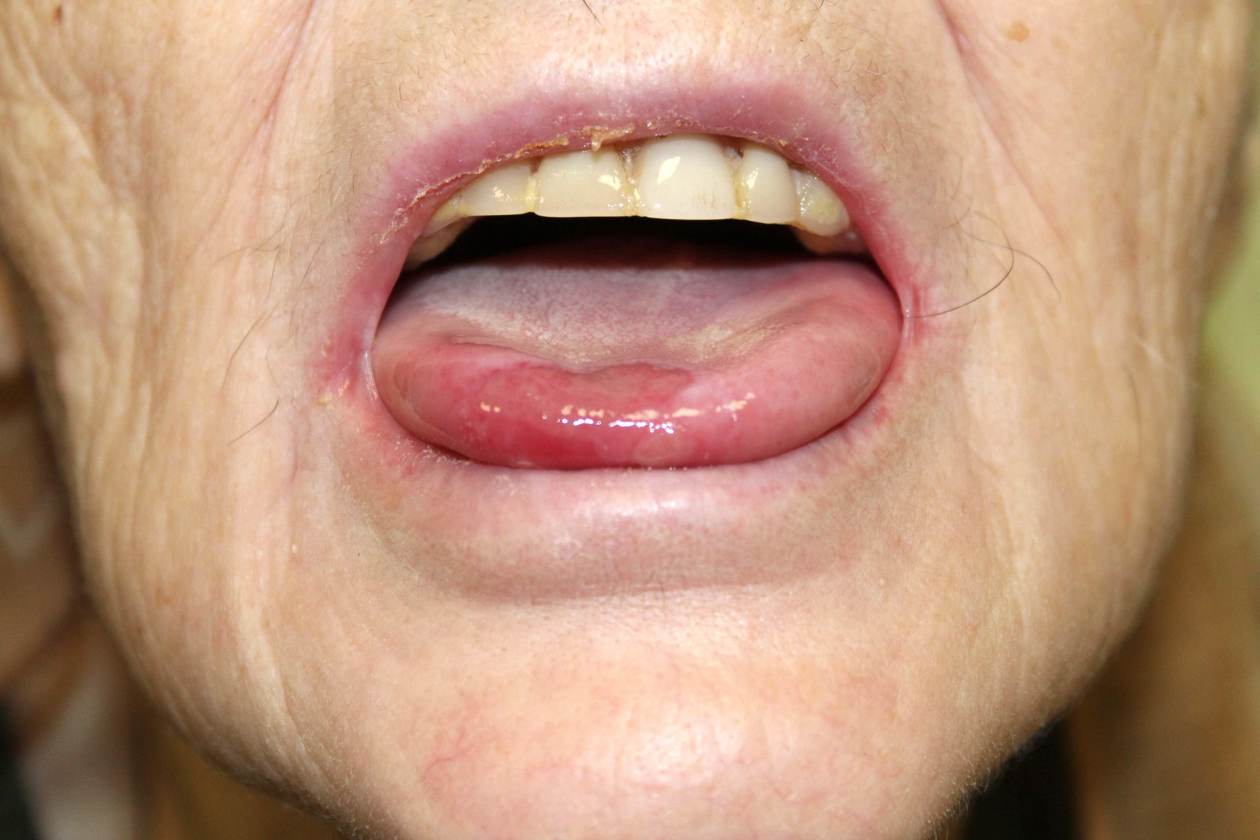 Erosions on oral mucosa