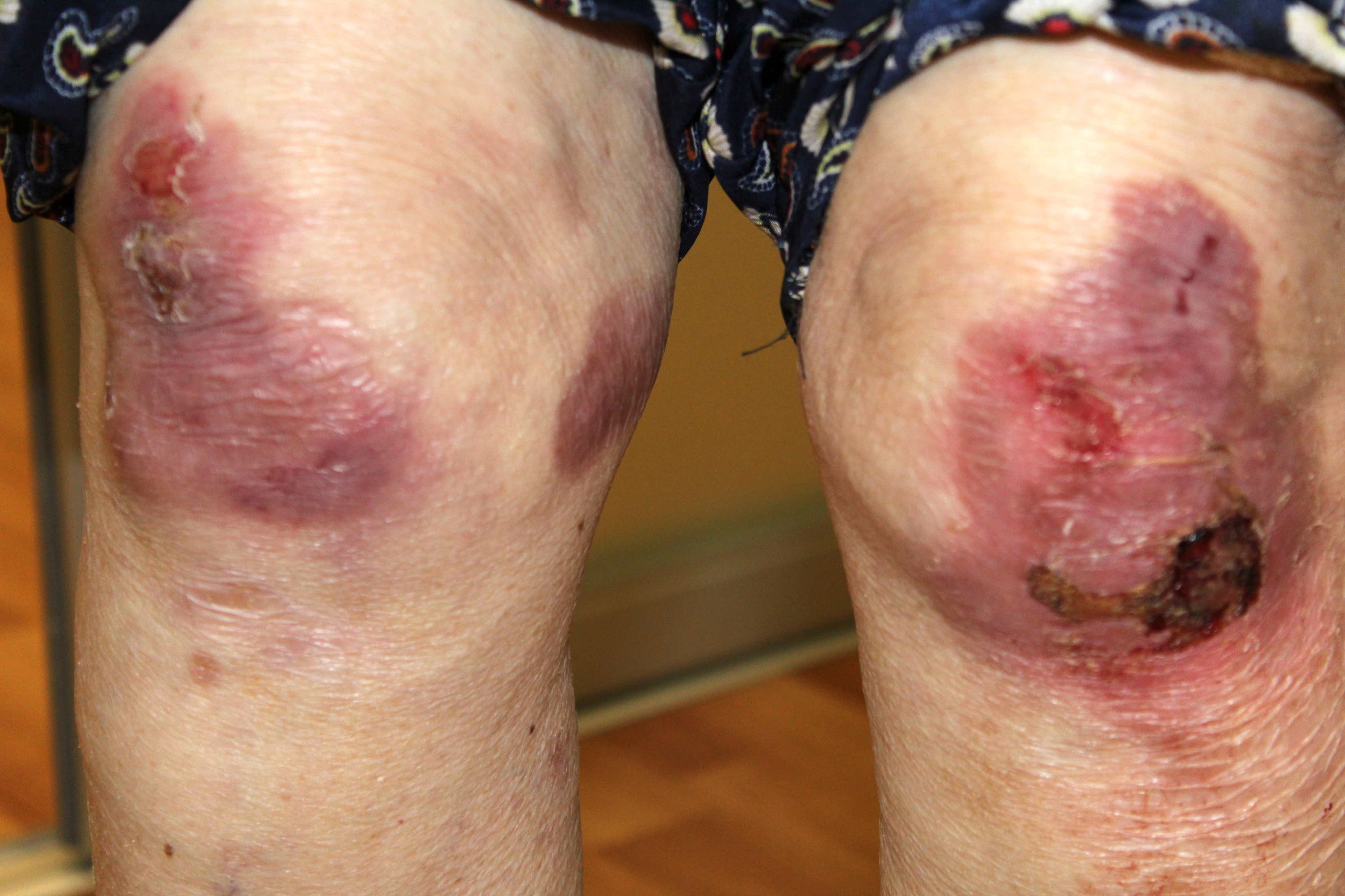 Erosions on the knees