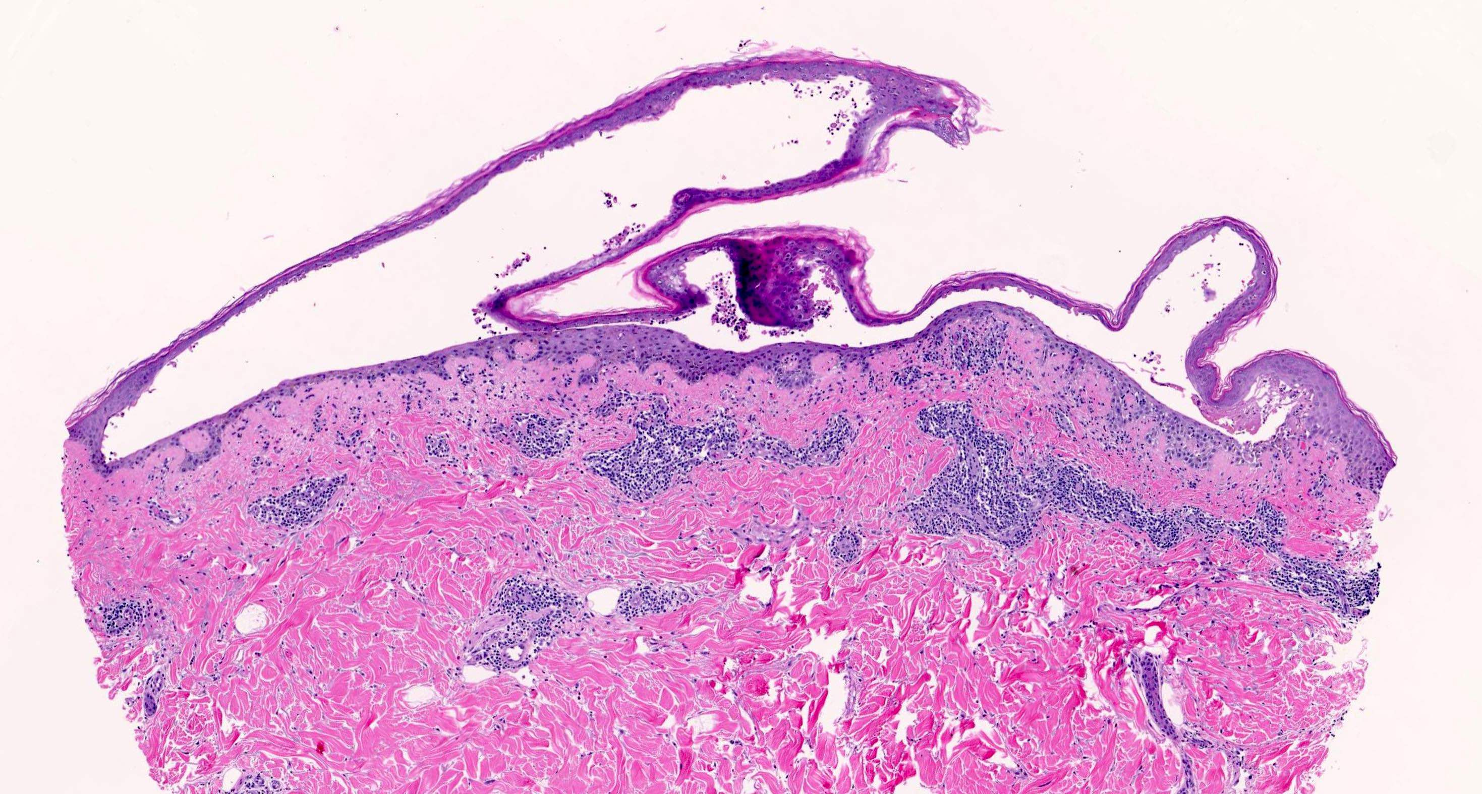 Blister with lichenoid inflammation