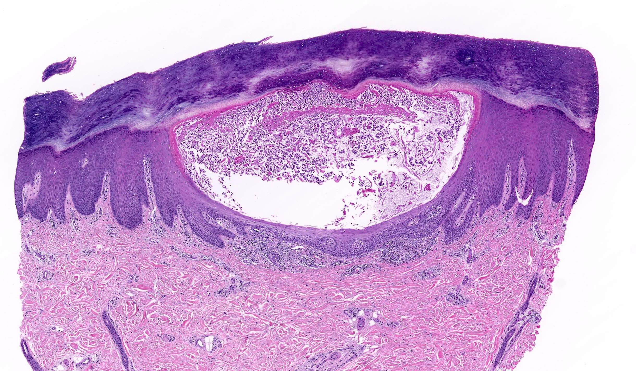 palmoplantar psoriasis pathology