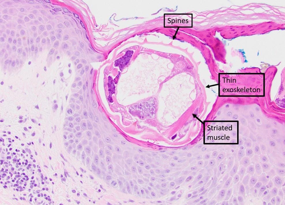 Mite anatomy