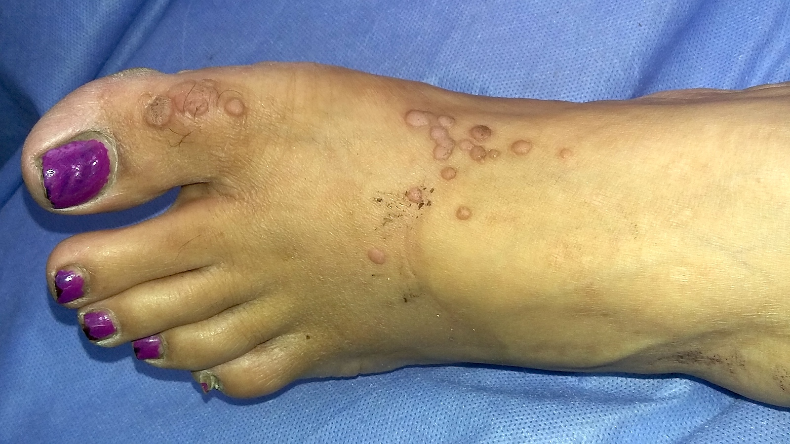wart on right foot icd 10)