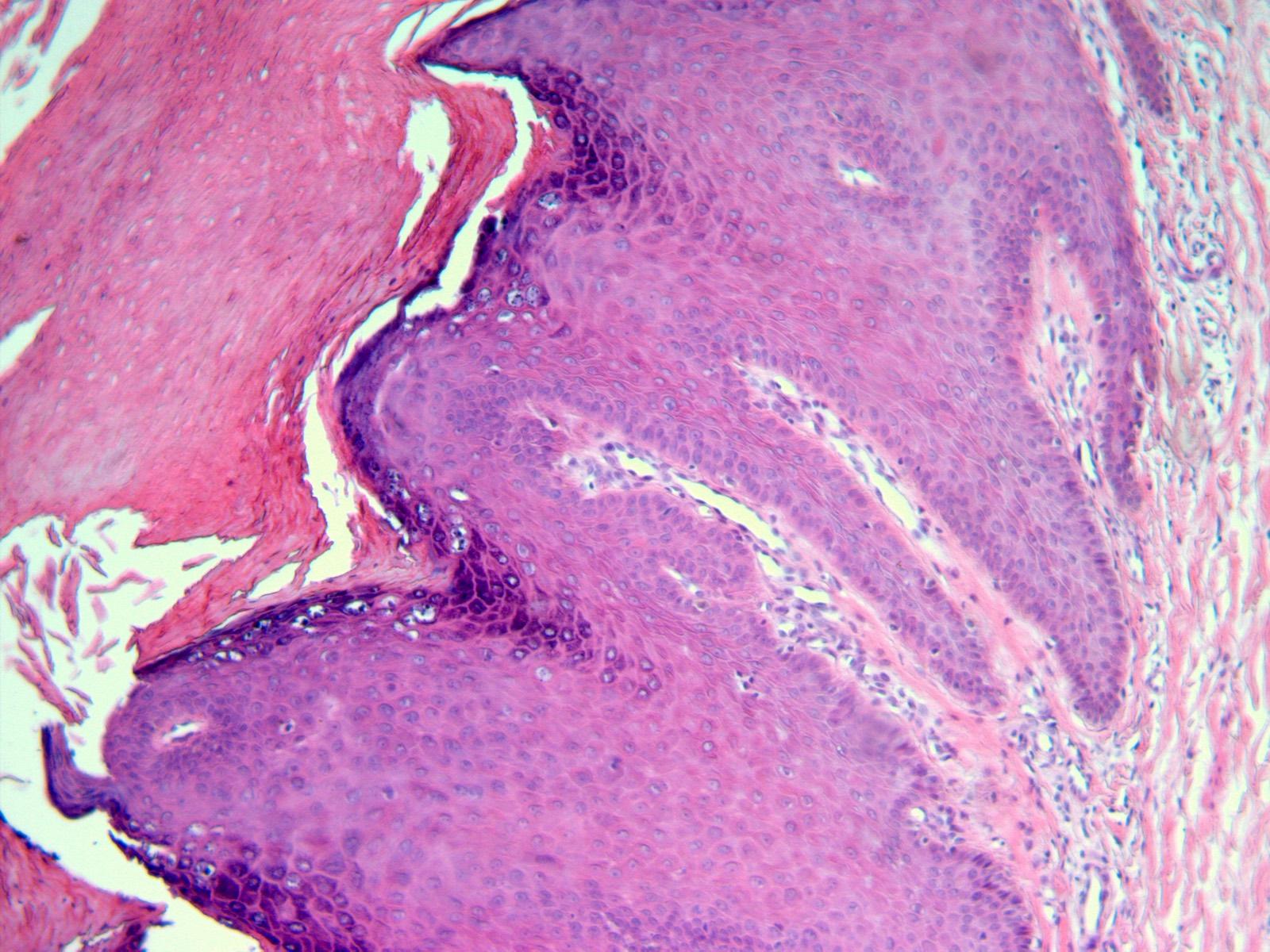 hpv skin pathology)