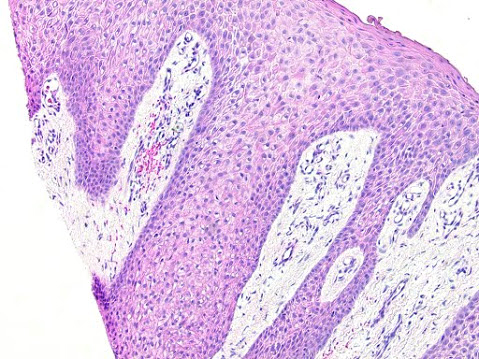 Clear cell acanthoma