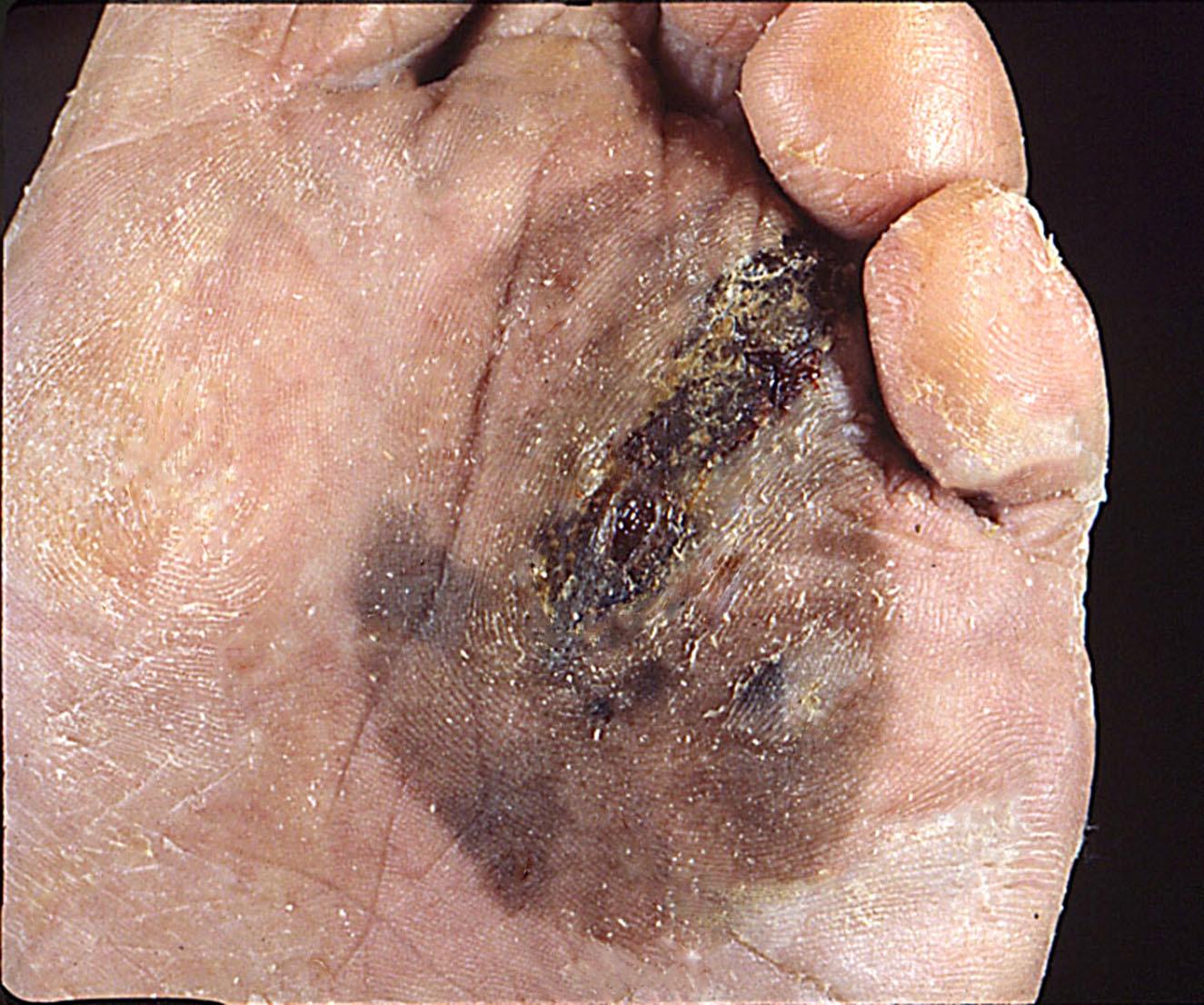 Invasive acral lentiginous melanoma