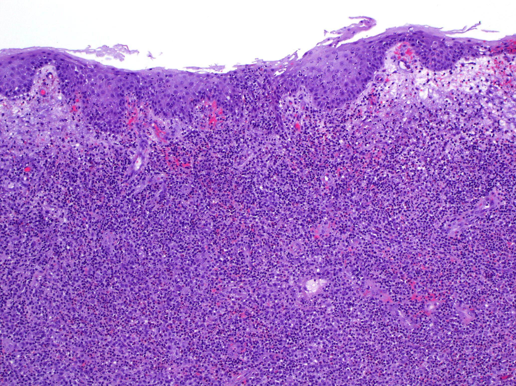 Lymphomatoid papillomatosis patológia