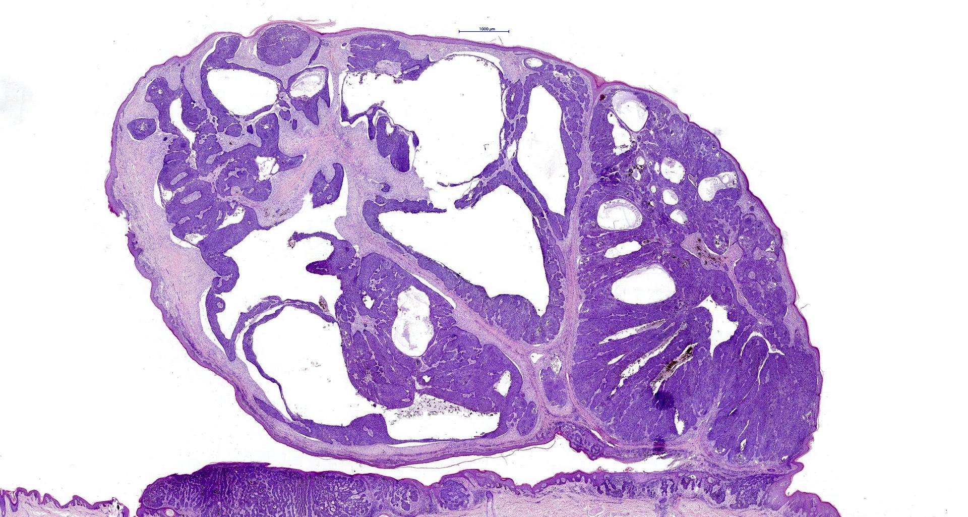 Nodulocystic BCC