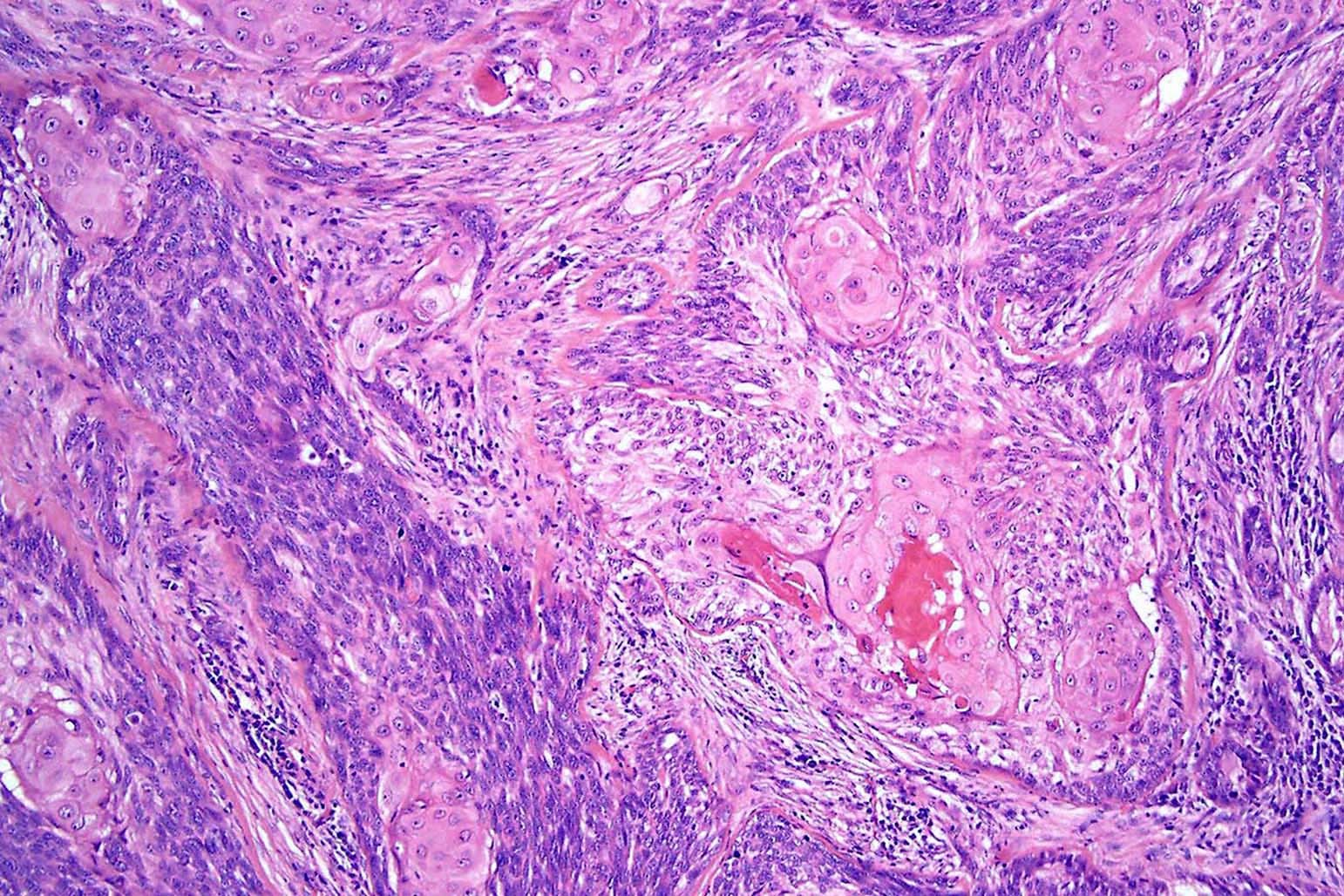 Basosquamous carcinoma