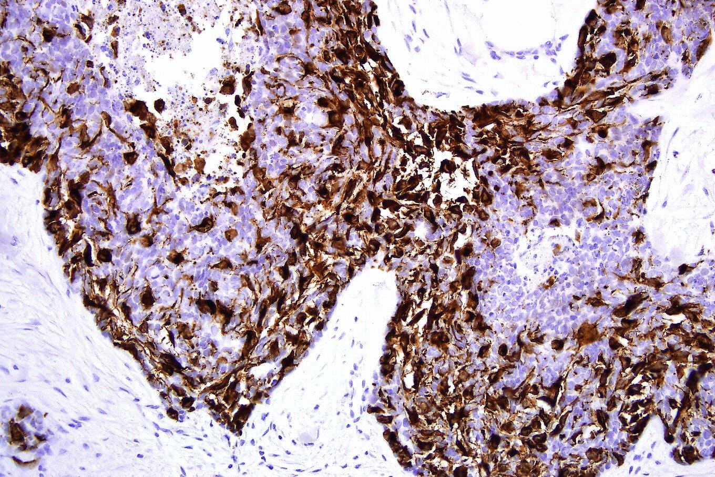 Basomelanocytic tumor: melanA