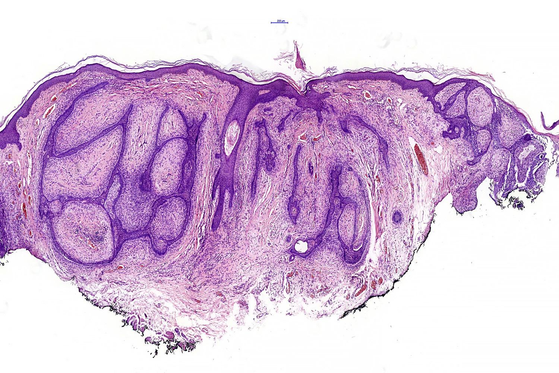 Fibroepithelial BCC (Pinkus tumor)