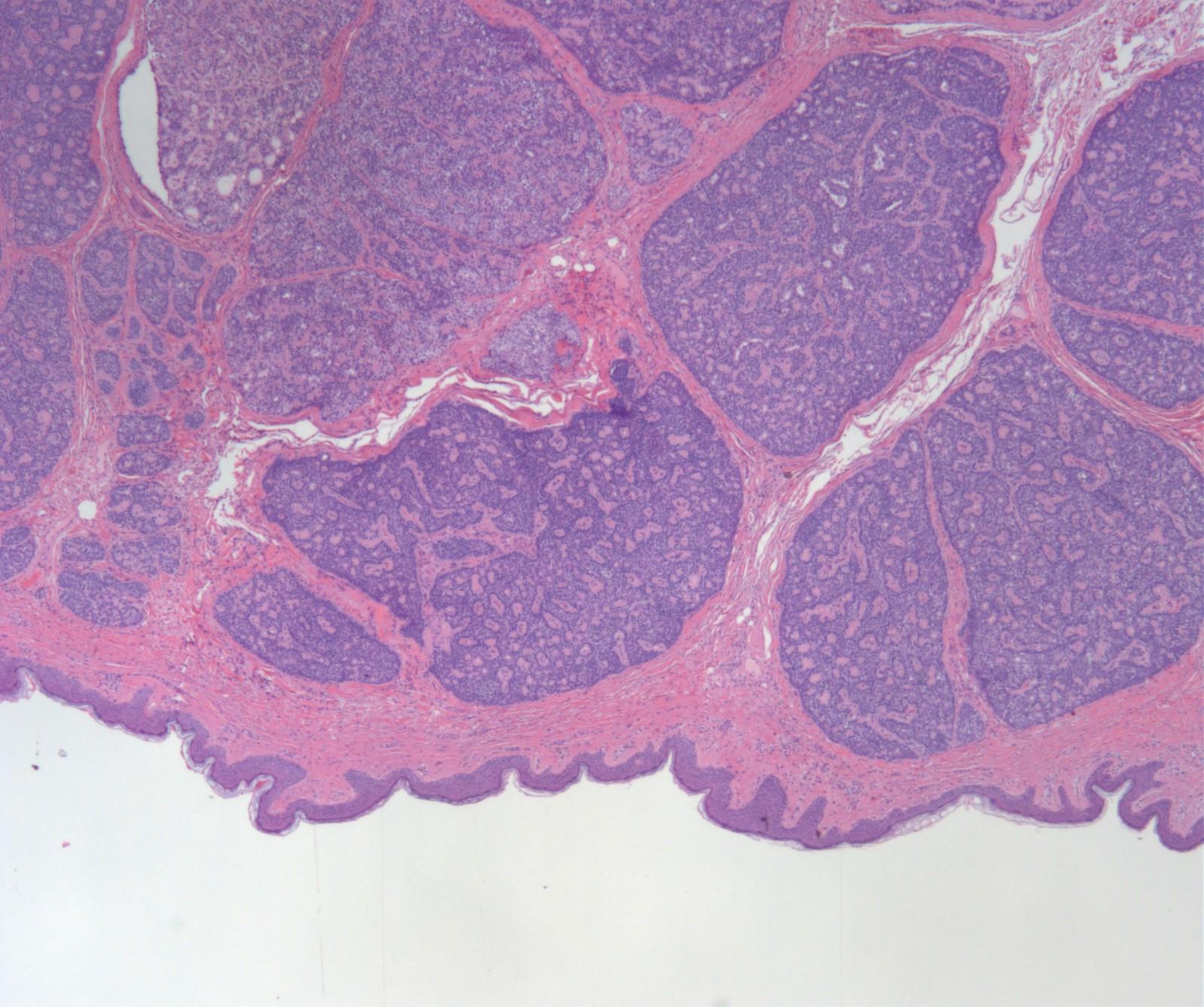 Unencapsulated tumor