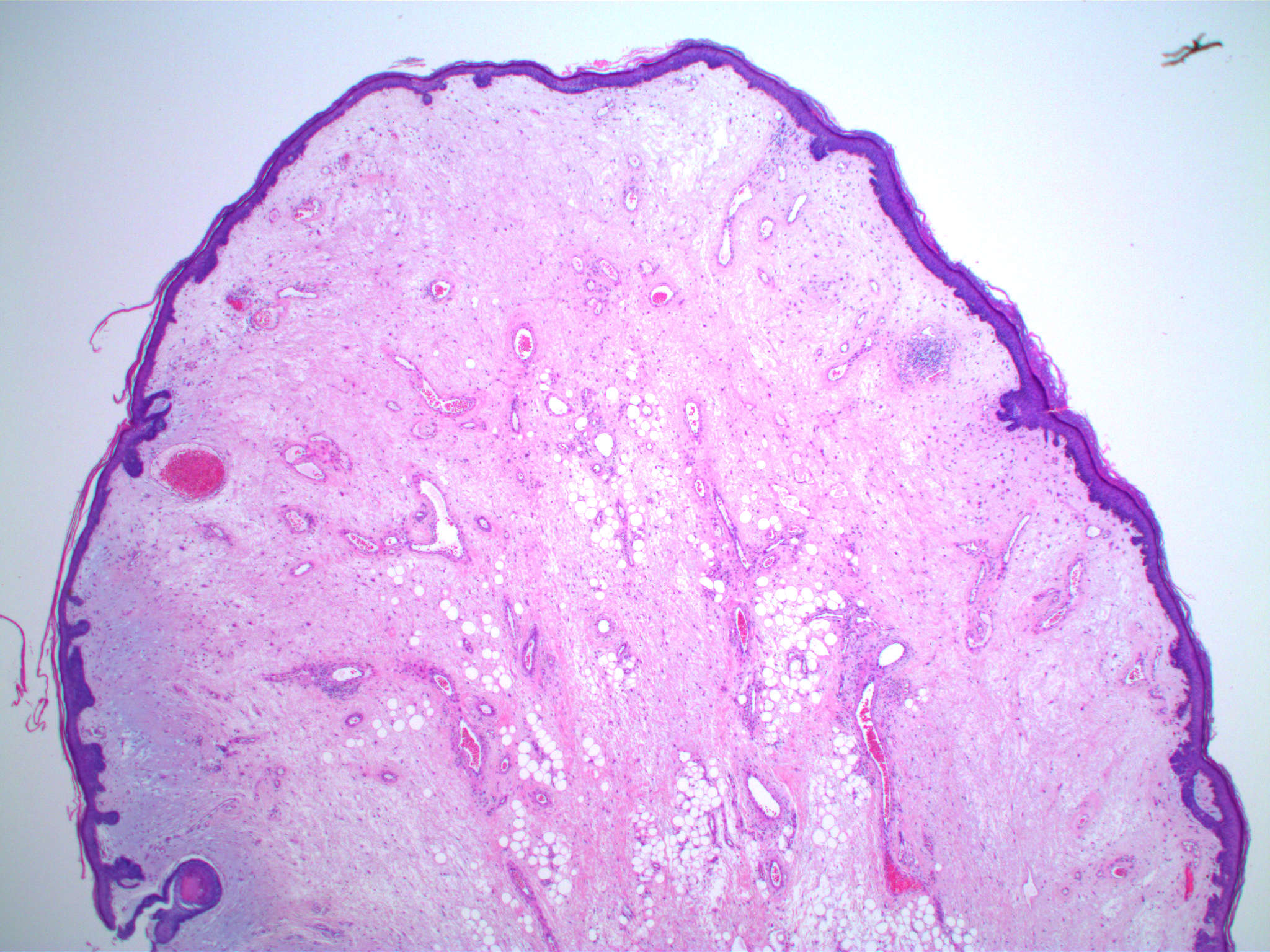Stromal edema