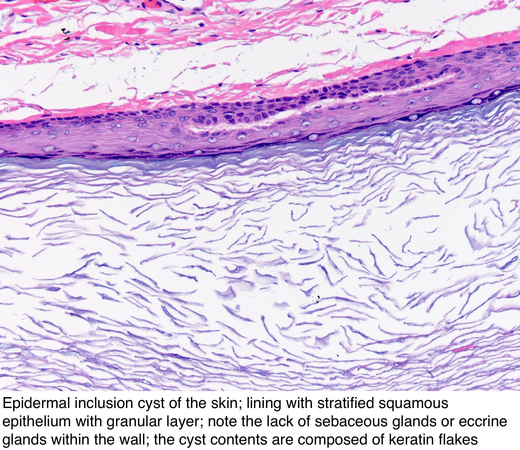 Pathology Outlines Epidermal Epidermoid Type
