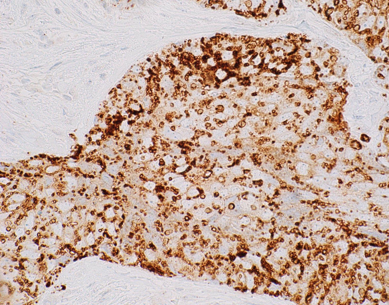 Adipophilin - membranous vesicular staining