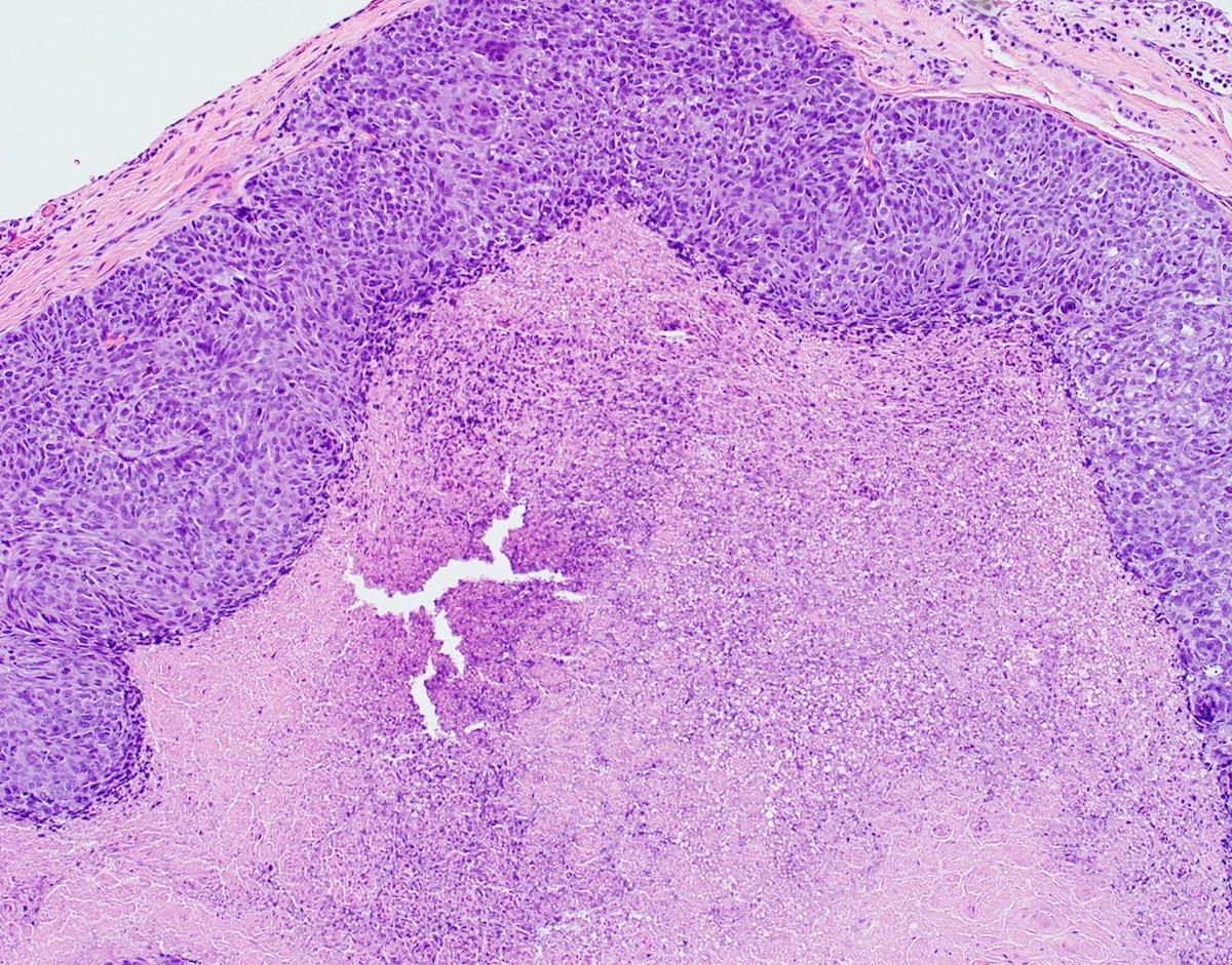 Extensive central (comedo) necrosis