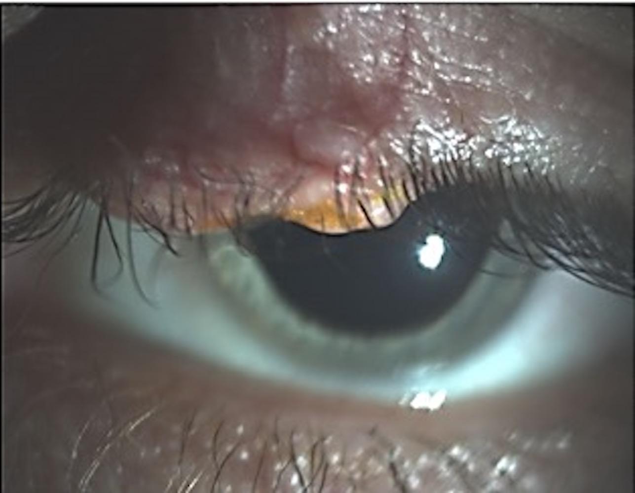 Periocular sebaceous carcinoma