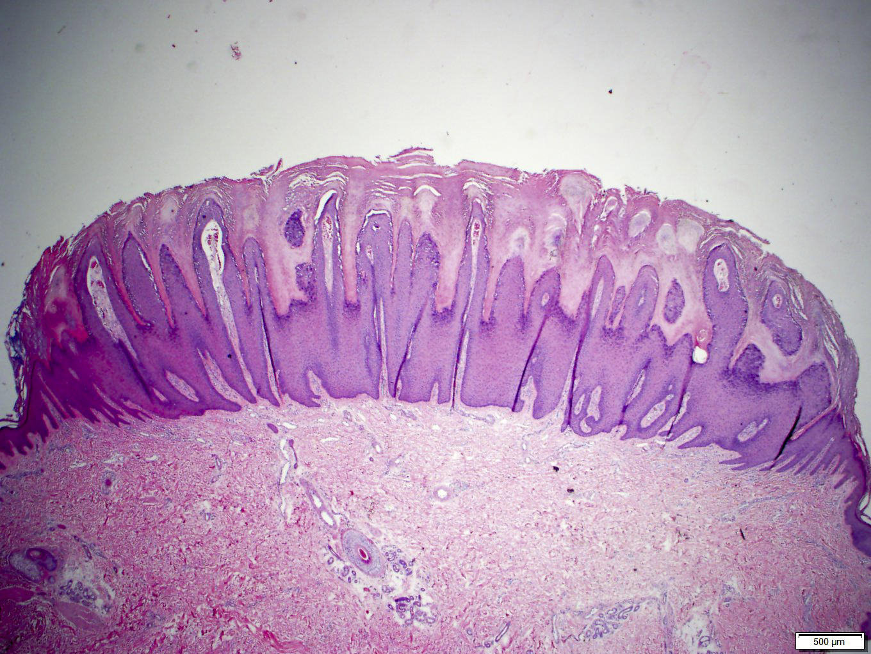 Verruca vulgaris