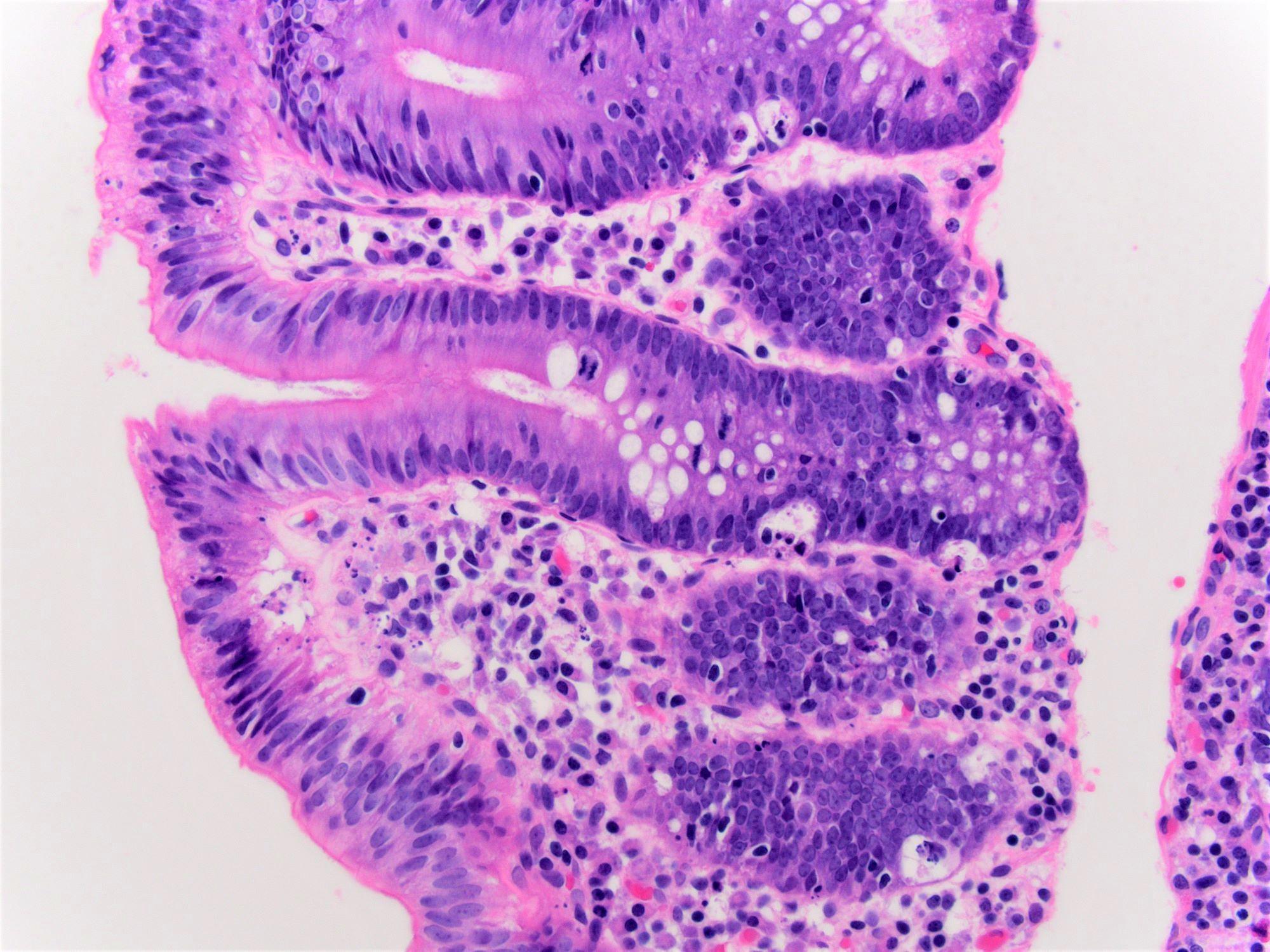 Colon biopsy
