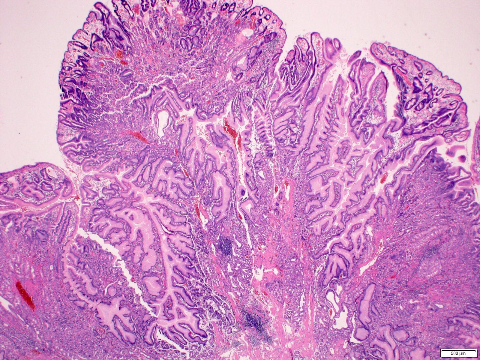 Ileal polypoid lesion