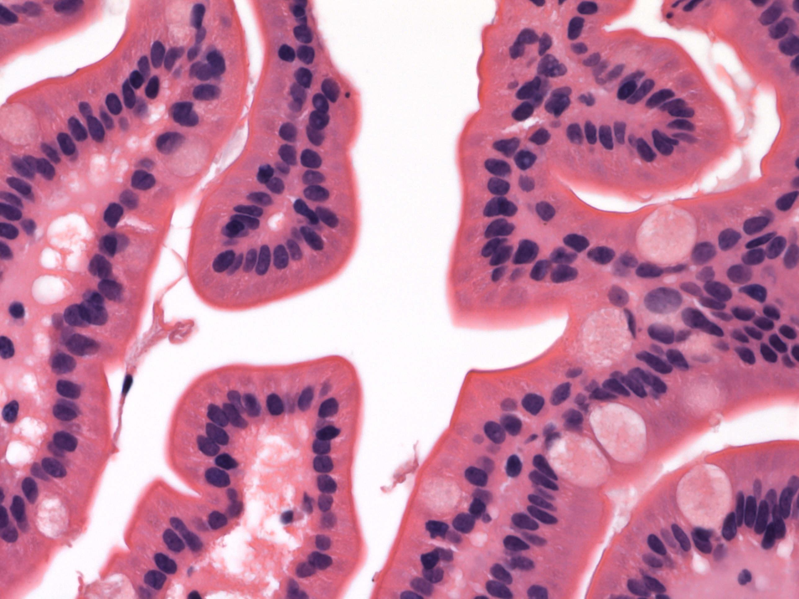 Small intestine-normal (duodenum)