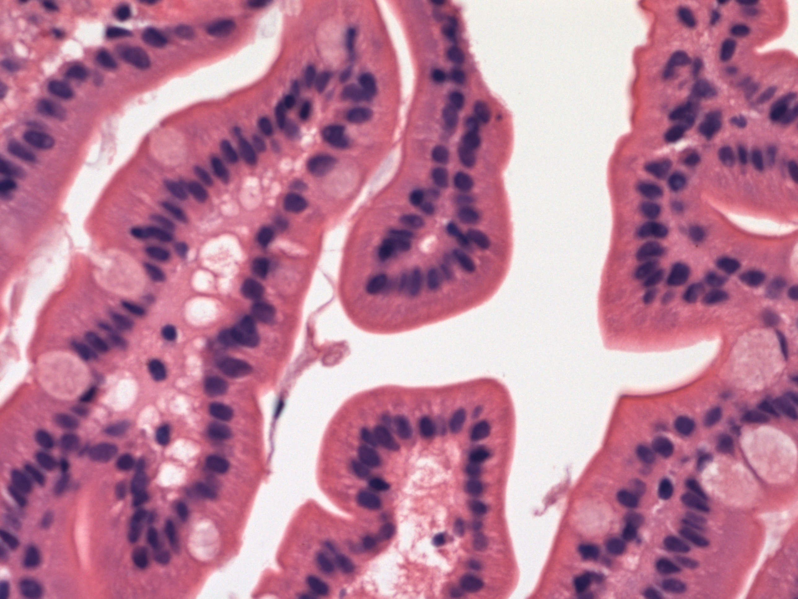 Small intestine-normal (duodenum)