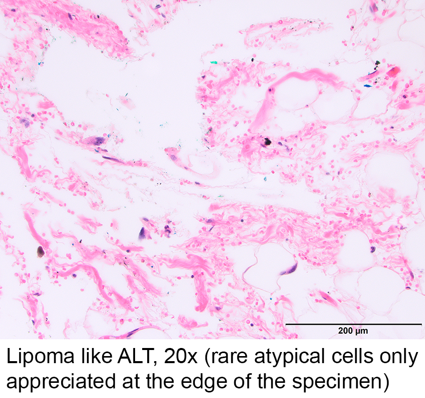 Pathology Outlines - Atypical lipomatous tumor / well differentiated