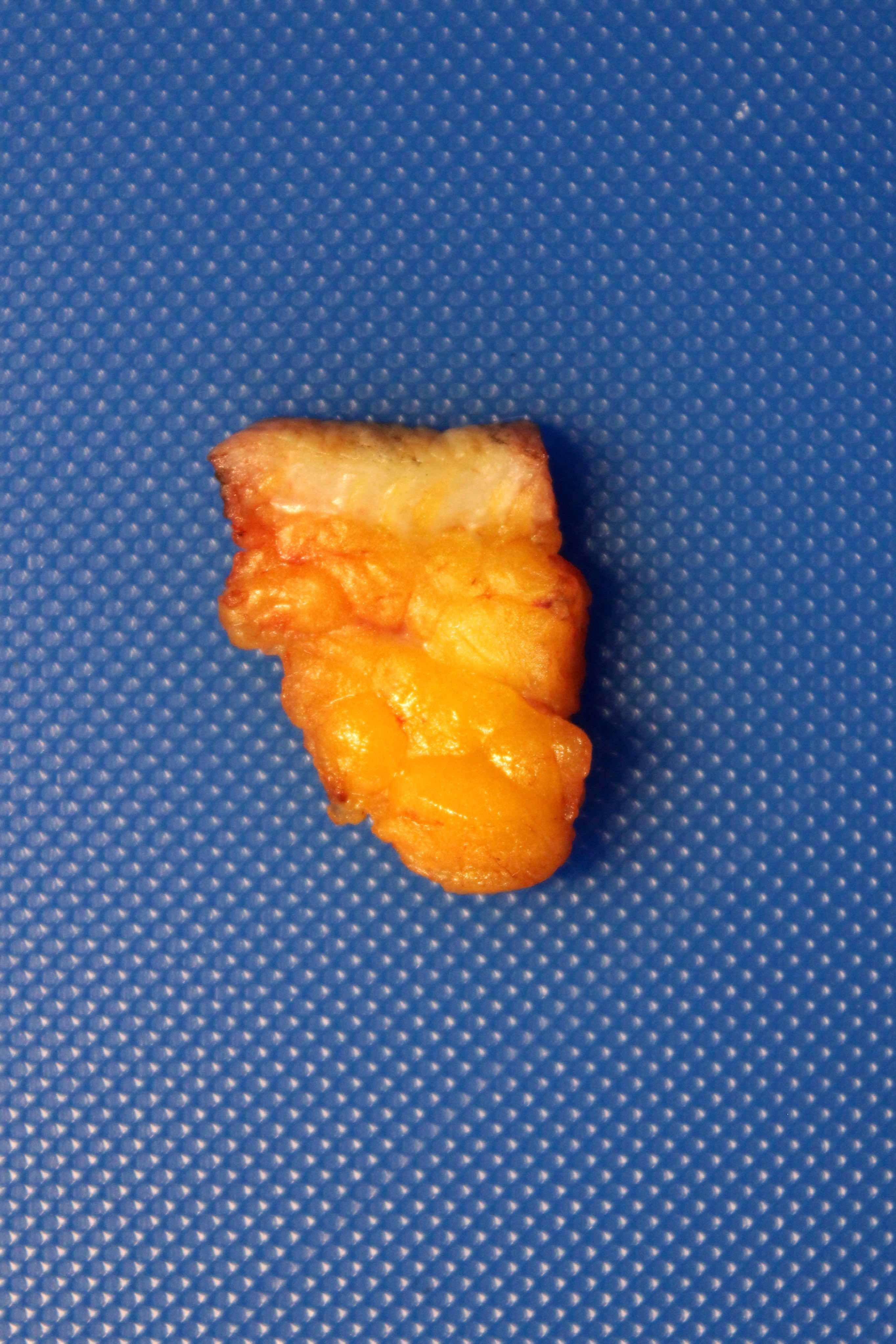 Subcutaneous fibroadipose tissue