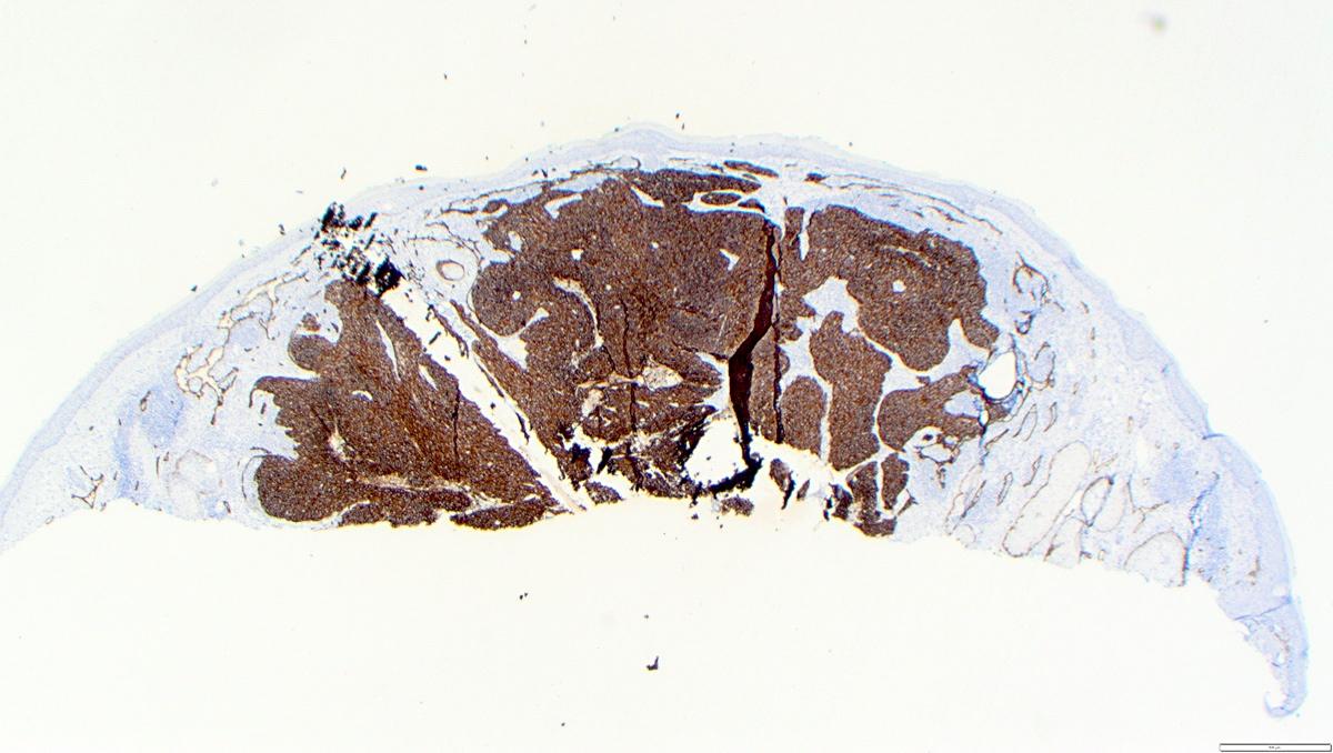 D2-40 immunostain