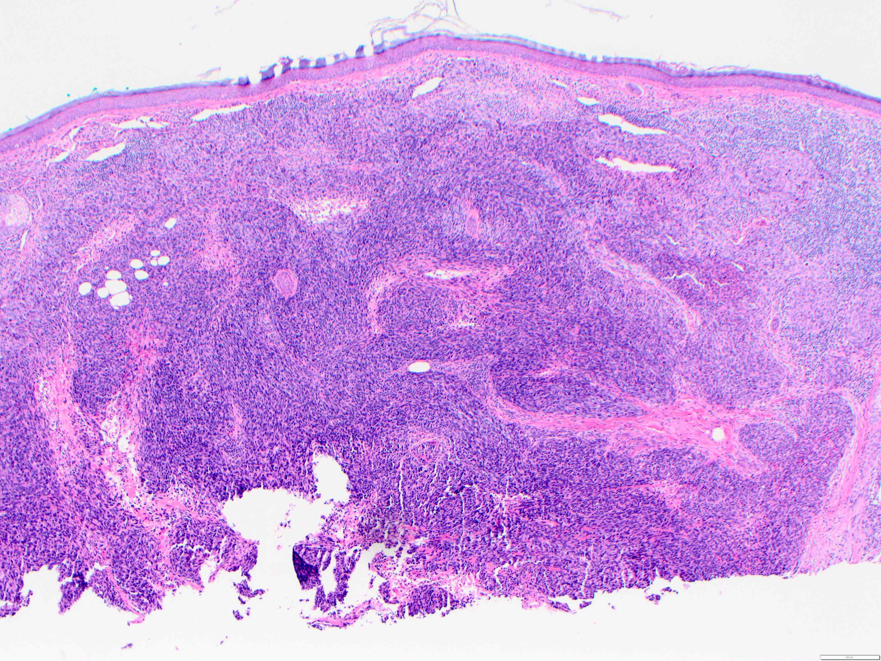 Solid pattern of angiosarcoma