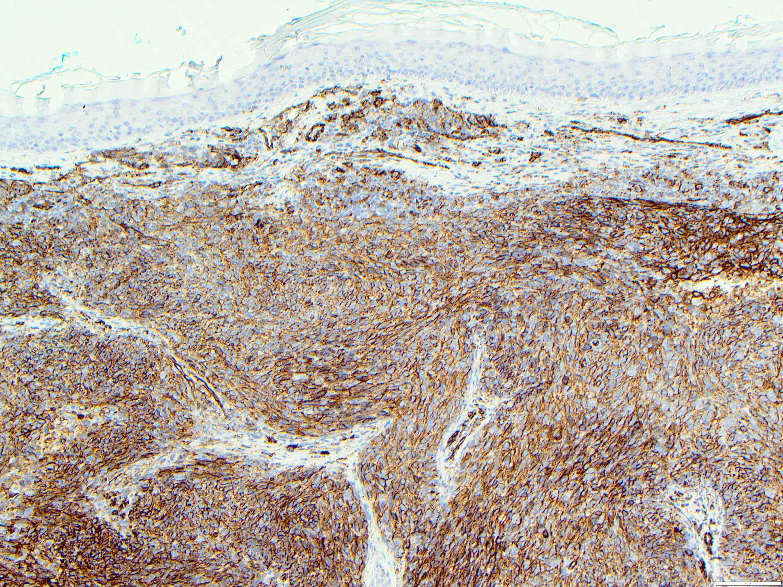 CD31 immunostain