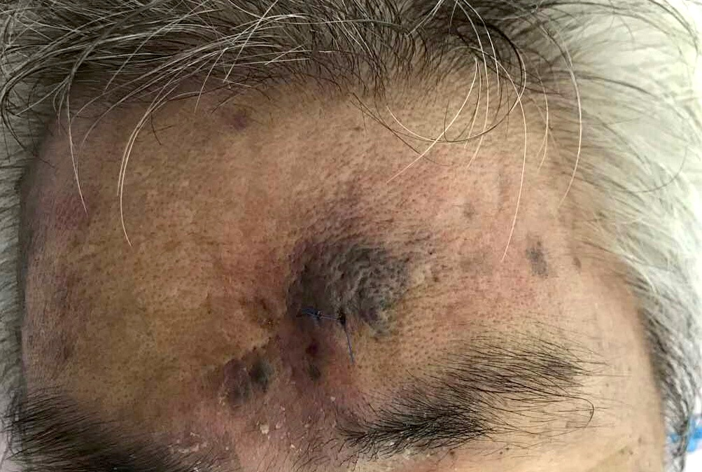 Angiosarcoma on the forehead