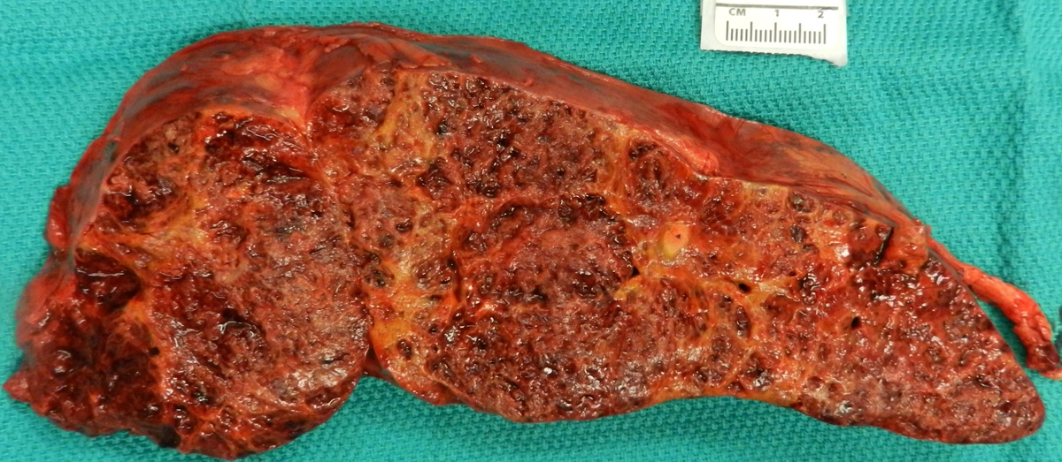 Cut surface of liver angiosarcoma