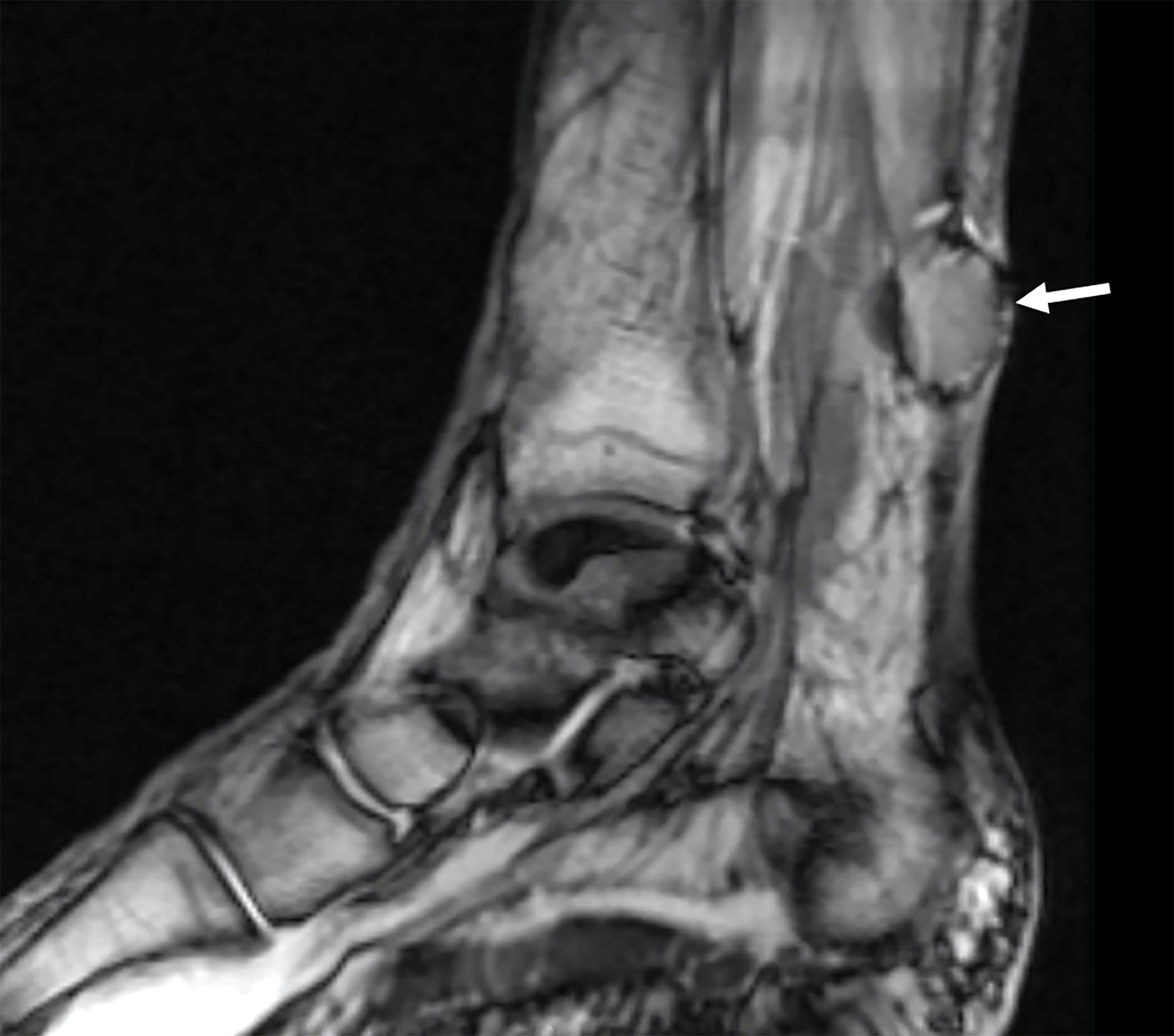 Myopericytoma, MRI